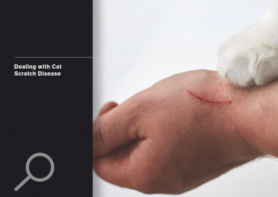 Dealing with cat Scratch Disease
